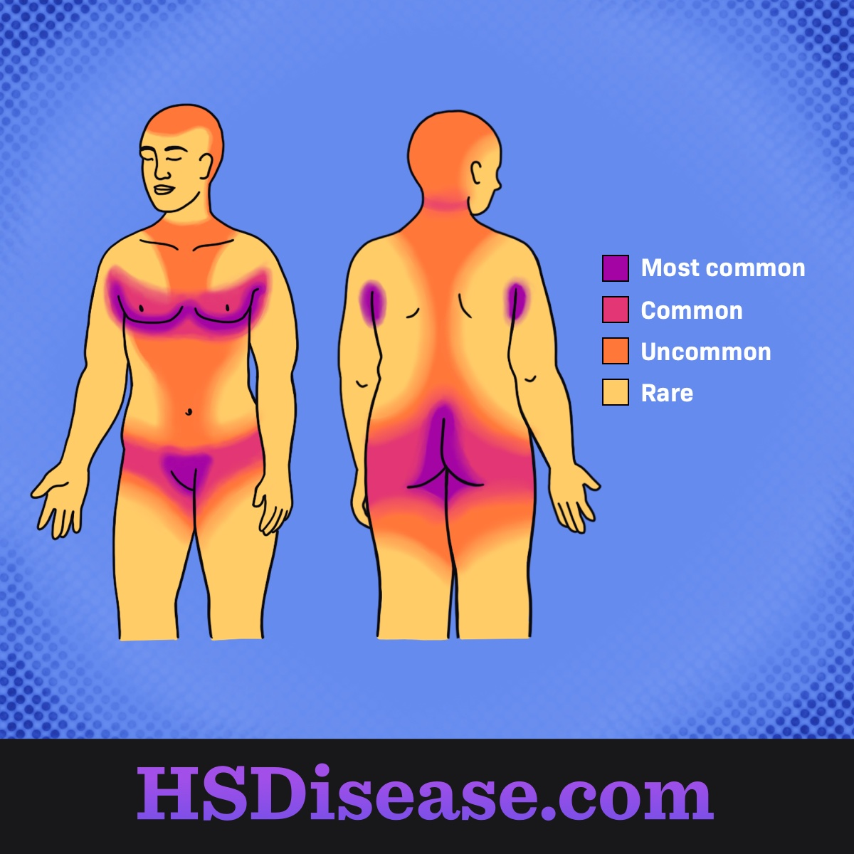 Areas of the body most affected by HS.