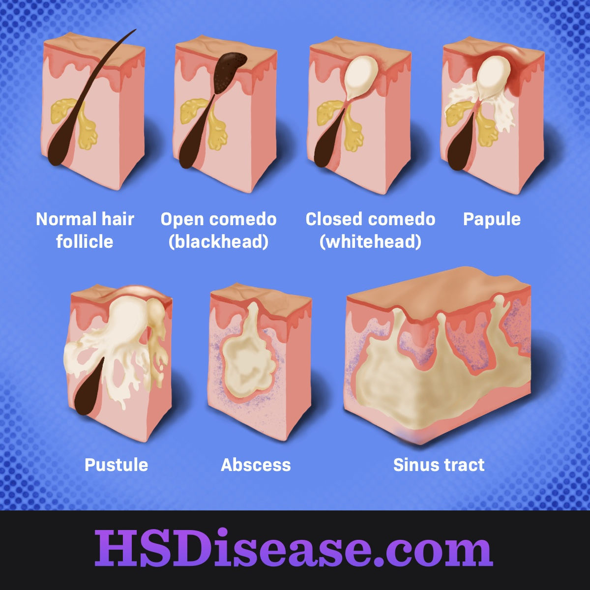 Types of bumps and lumps associated with HS.