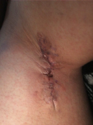 Selina's armpit after her first surgery.